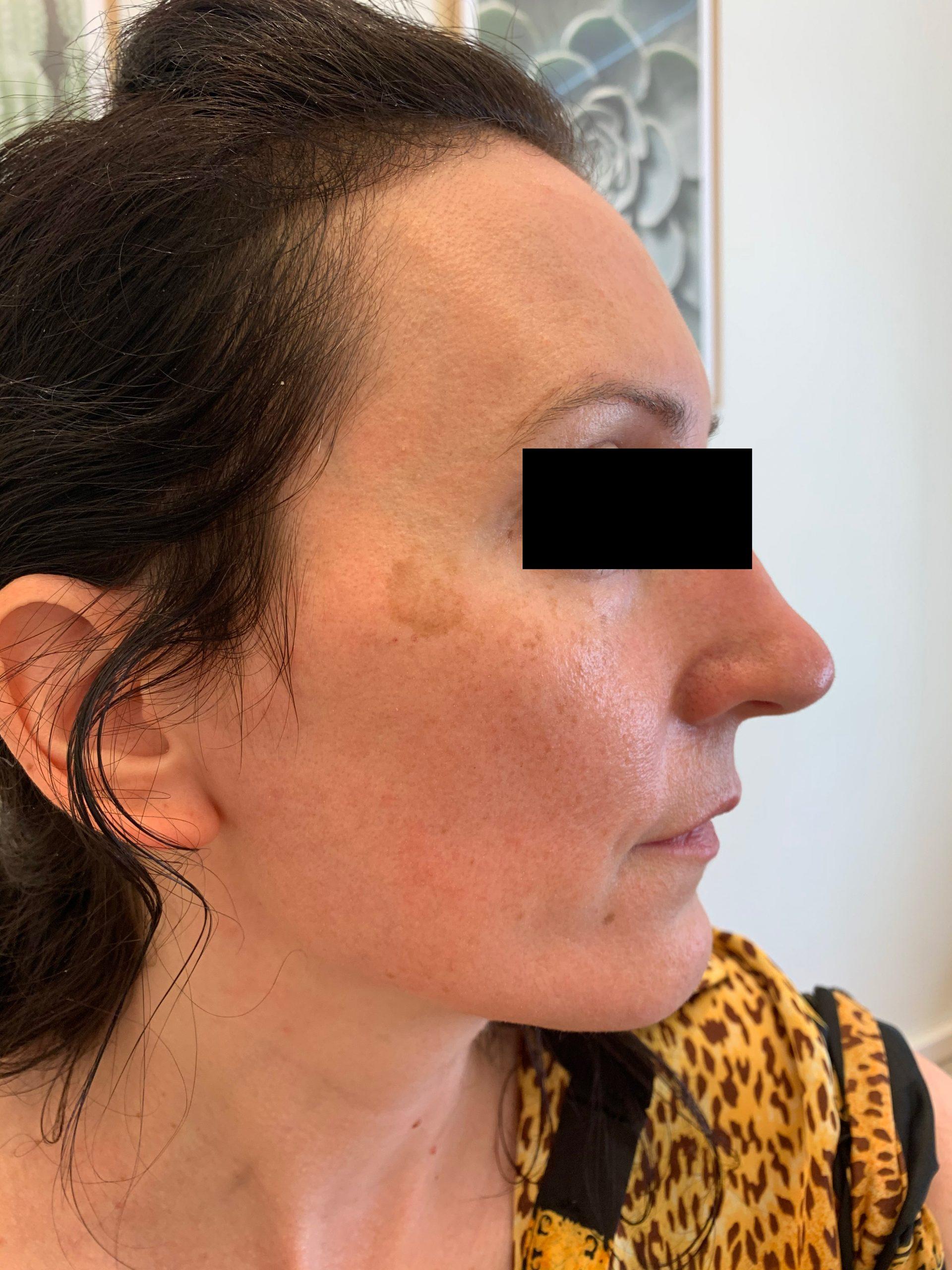 pigmentflekker før behandling